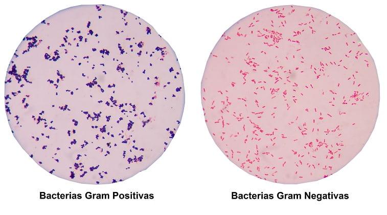 Diferencia entre Bacterias Gram Positivas y Gram Negativas