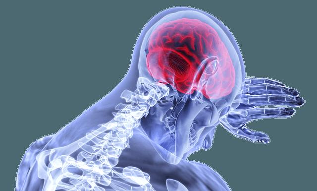 Diferencia entre ACV Isquémico y ACV Hemorrágico