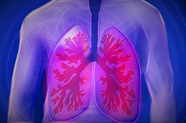 Diferencia entre Pulmonía y Neumonía